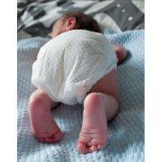 Mit dem Popo voran – Geburtsbericht einer Beckenendlage