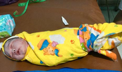 Gepucktes Baby im Geburtshaus in Indonesien