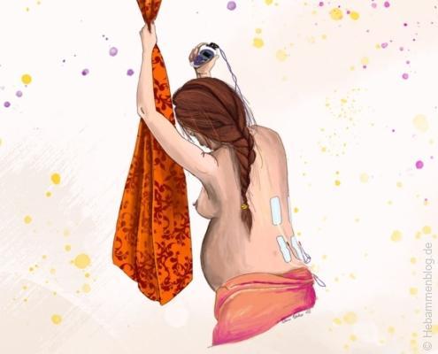 Schwangere mit Geburts-TENS unter Wehen